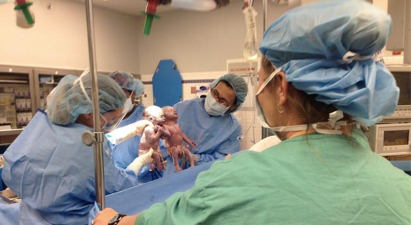 "These Rare Newborn ""Mono Mono"" Twins Held Hands Just After Birth"