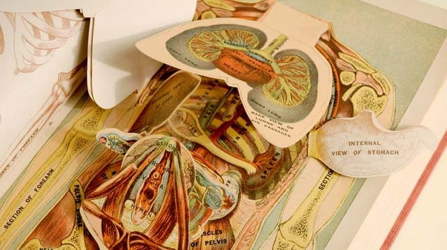 Doctors Used These Old Pop-Up Books to Learn How to Perform Surgery