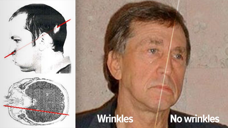 Man's half face is forever young after getting hit by particle beam