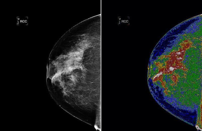 A Mammogram Made By NASA