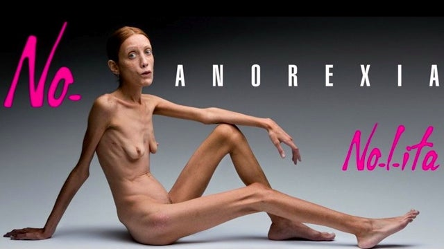 The Fashion Industry's Anorexia Problem