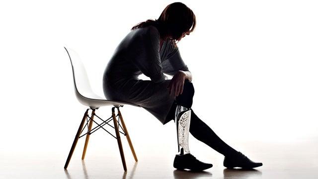 Custom Artificial Limbs Turn Prosthetics Into Personal Art Pieces