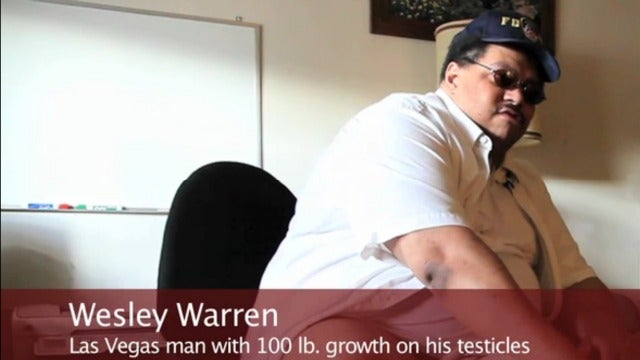 Man With 100-Pound Scrotum Can't Afford $1 Million Surgery