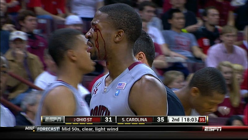 Body Parts Do Not Bend That Way: Gruesome Sports Injuries As Seen On TV