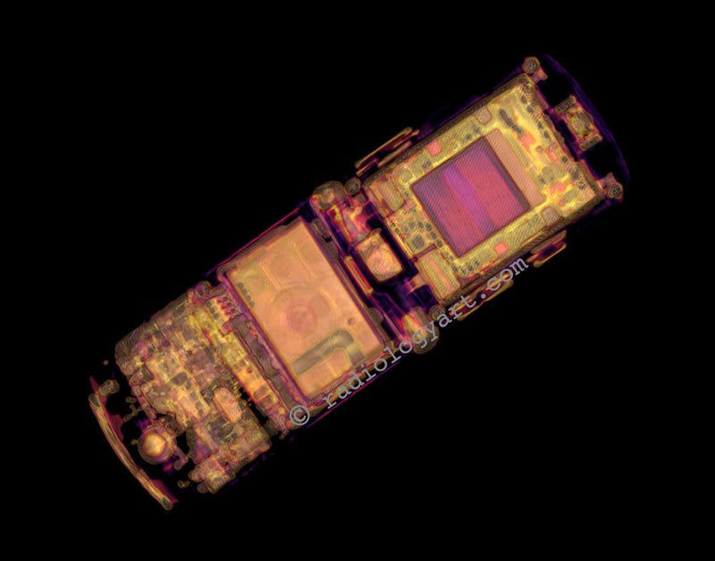 CT Scans of iPhone: Safer Than Exploratory Surgery