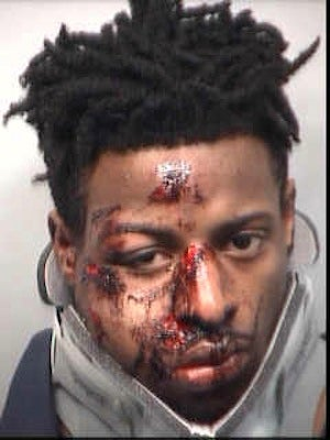 20-Year-Old Allegedly Shoots Atlanta Police Officer In the Face, Looks Like He Got the Shit Beat Out of Him