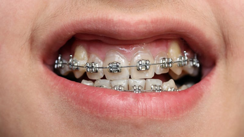 Southeast Asian Teenagers Are Obsessed with Fake 'Fashion Braces'