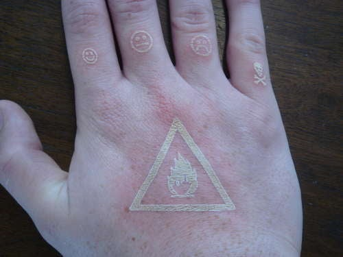 Guy Uses Laser-Etch Machine to Tattoo Himself (Verdict: Flaming Nutcase)
