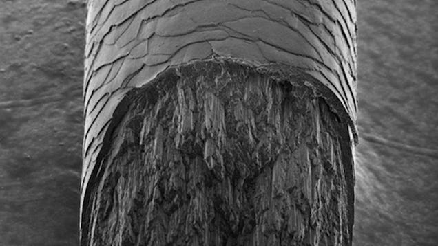 X-Rays Reveal a Mysterious Component of Human Hair