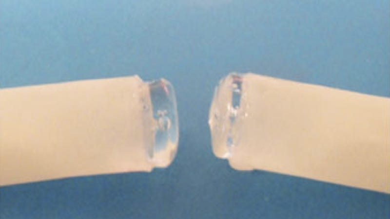 Now we can join blood vessels together without stitches