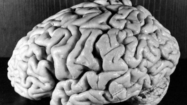 Most of Einstein's Brain Is Now Concentrated in New Jersey and Philadelphia