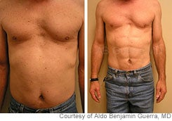 'Abdominal Etching' Provides a Six-Pack Without the Exercise
