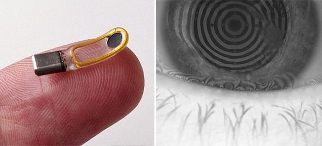 An Eyeball Implant That Makes You Cry