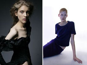 Modeling Agency Will Incite Thinness If It Damn Well Chooses!