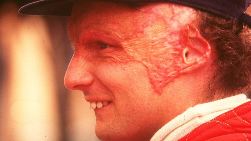 COTD: Niki Lauda Edition