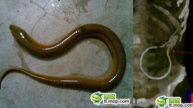 Chinese Man Requires Emergency Surgery After the Swamp Eel He Stuck Up His Butt Gnaws Through His Colon