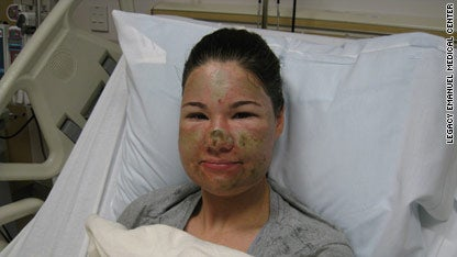 Horrific Acid Attack Was a Hoax