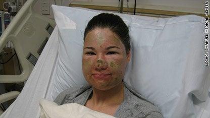 Horrific Acid Attack Was a Hoax