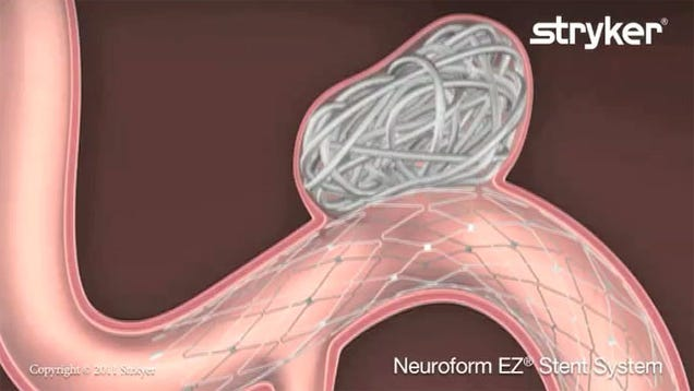 What Is Coil Embolization?