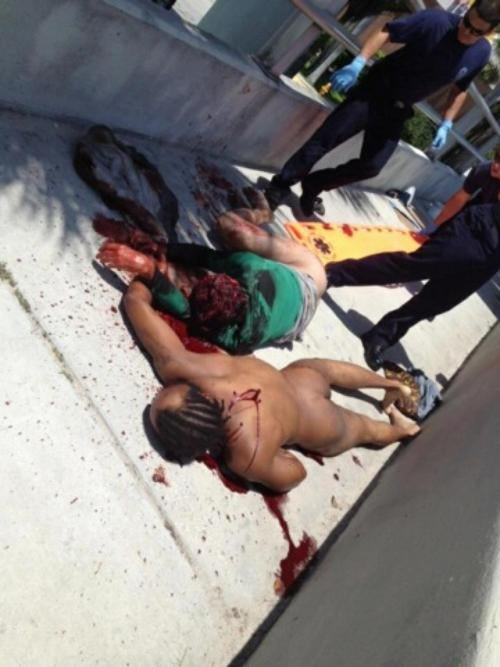 Do These Unbelievably Horrifying Photos Show the Miami Cannibal's Victim?