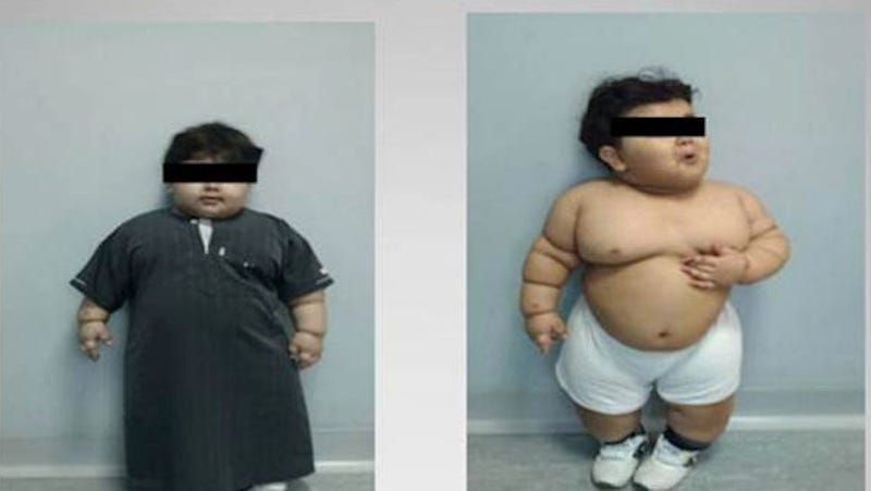 Morbidly Obese Toddler Undergoes Gastric Bypass Surgery