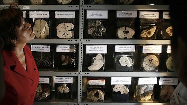 The world's largest museum collection of brains is on display in Peru