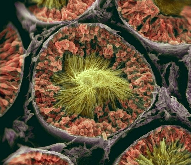 Advertisments for scanning electron microscopes take you into the world of nano-monsters