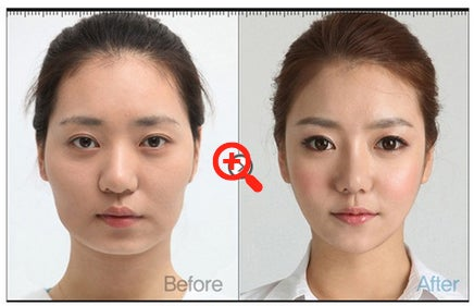 I Can't Stop Looking at These South Korean Women Who've Had Plastic Surgery