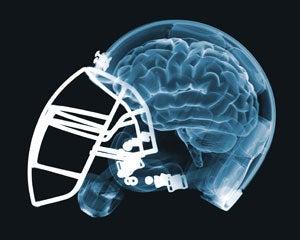 """NFL Dementia Study Is Not Exactly """"Scientific"""""""