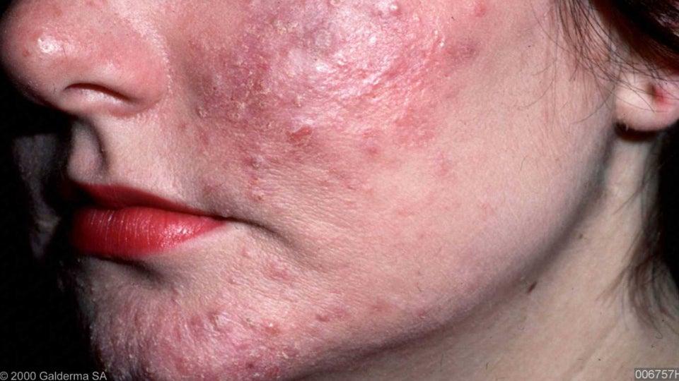 дерматит аллергия на животных