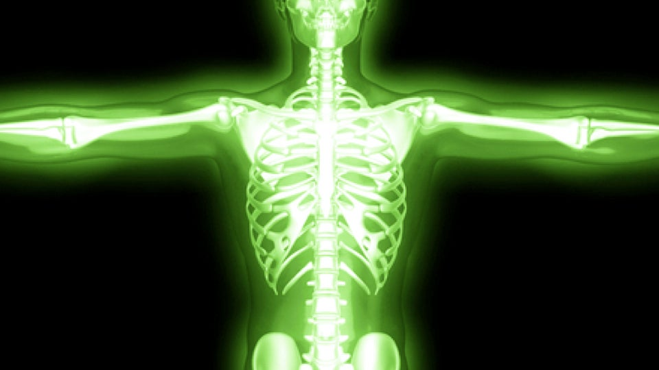 Radiation poisoning effects on human