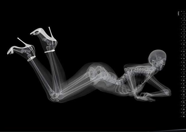 X-ray pinups: Boners for bones