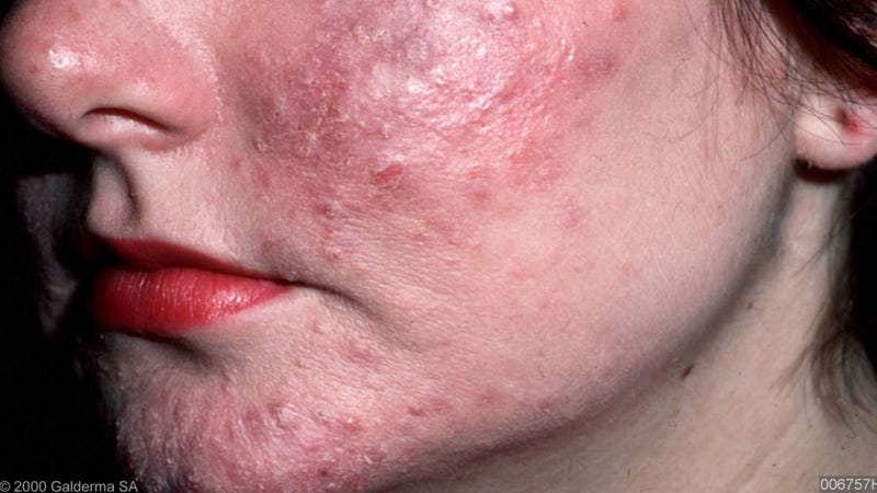 Rosacea could be caused by mites unleashing feces inside your pores