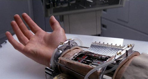 When Will You Be Able to Replace Your Arm with a Cybernetic One?
