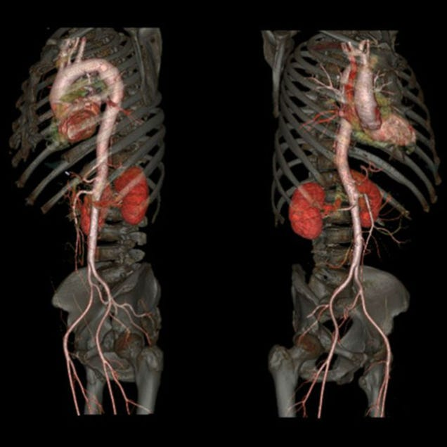 Un nuevo escáner logra estas increíbles imágenes de nuestro cuerpo