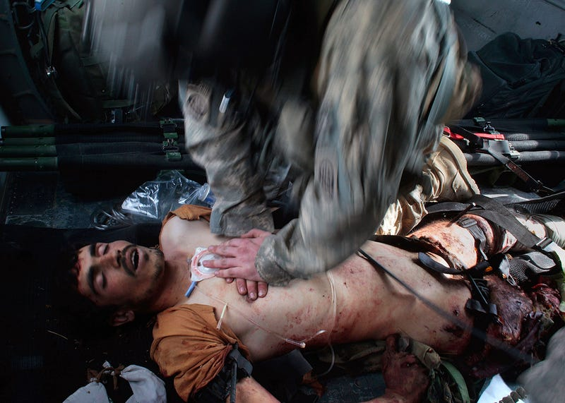 The Unflinching War Photography of Chris Hondros