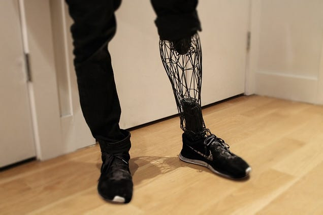 This Beautifully Minimalist Prosthetic Is Made From 3D Printed Titanium