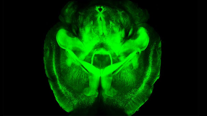 Scientists can now turn brains invisible