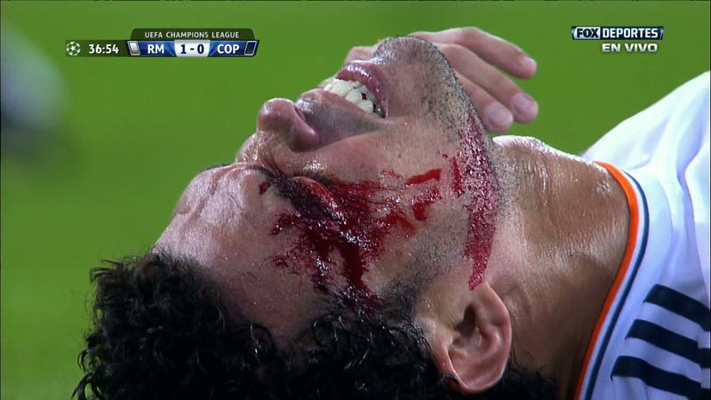 Here's Pepe Getting A Gash In His Face Stapled Shut On The Pitch