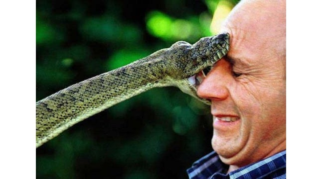 Angina Rub Could Keep You Alive After Being Fanged by a Cobra