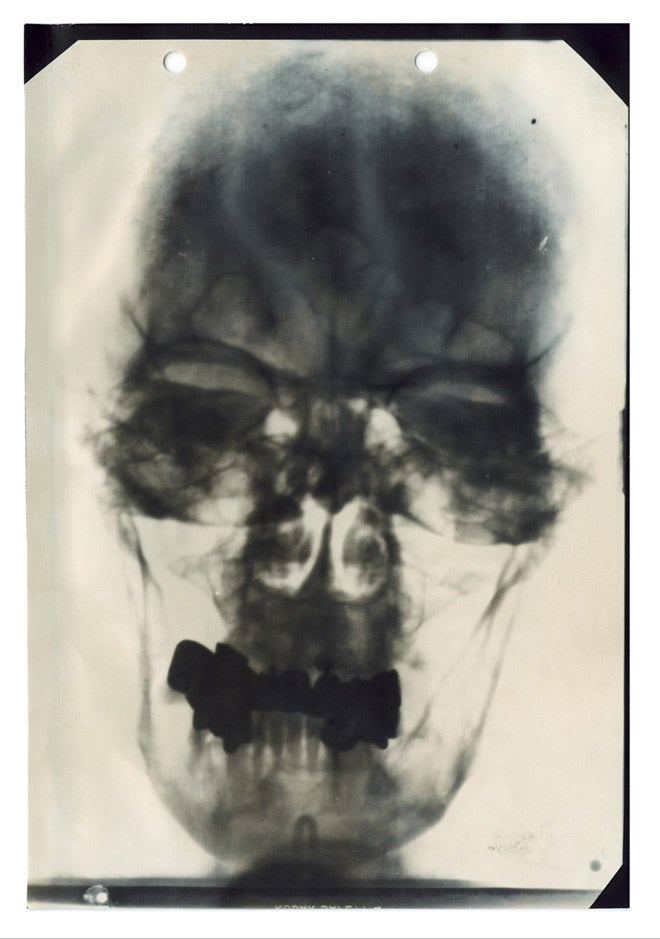 Behold, an X-ray of Hitler's head