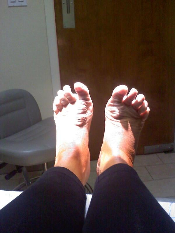 Wendy Williams Has Some Messed-Up Feet