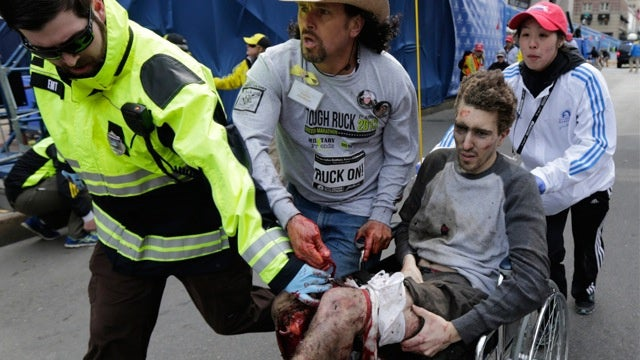 Wounded Man in Iconic Marathon Photo Helped Identify Alleged Bombers