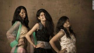 Acid Attack Survivors Model for New Photo Shoot
