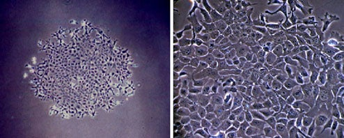 Japan Makes First Brain Tissues From Stem Cells