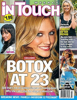 Making Billions From Bad Sausage: The History of Botox
