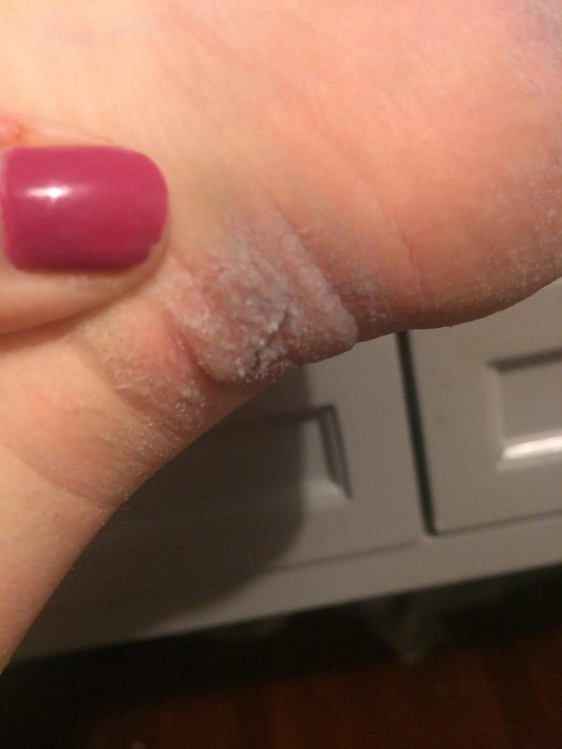 Gross Foot Skin Questions (Warning: Photos)