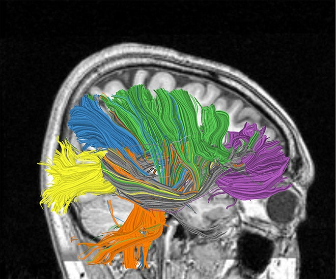 Reverse-Engineering of Human Brain Likely by 2020