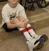 Disabled 4-Year-Old Told to Remove Leg Braces and Walk Through Metal Detector