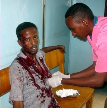 More Than 30 Dead in Somalia Hotel Attack